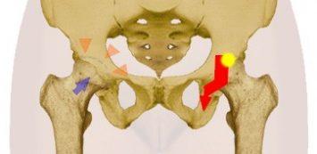 ha a csípőízület fáj