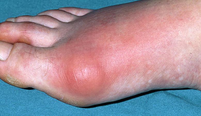 rheumatoid arthritis a lábujjakon)