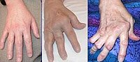 psoriasis ízületi gyulladás szinovitisz)
