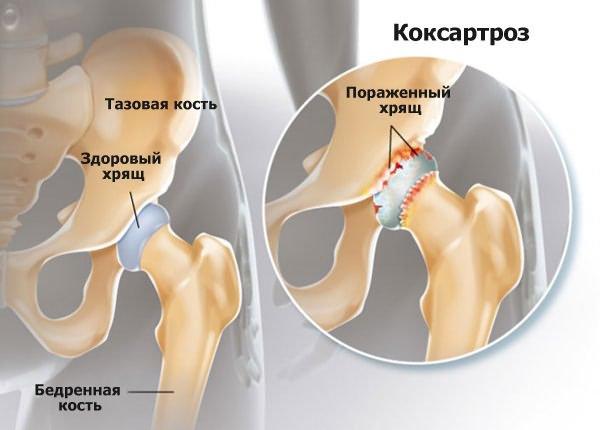 A csípőízület coxarthrosisának kezelése Bubnovszkij módszerével - gyógyító torna - Könyök
