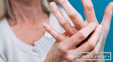 ízületi fájdalom ujj deformáció