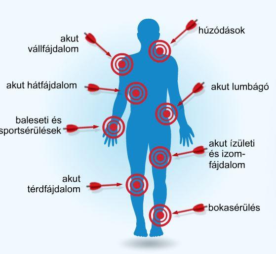 A térd mögötti duzzanat okozza gonartrosis artrózis térd gyógyszeres kezelés