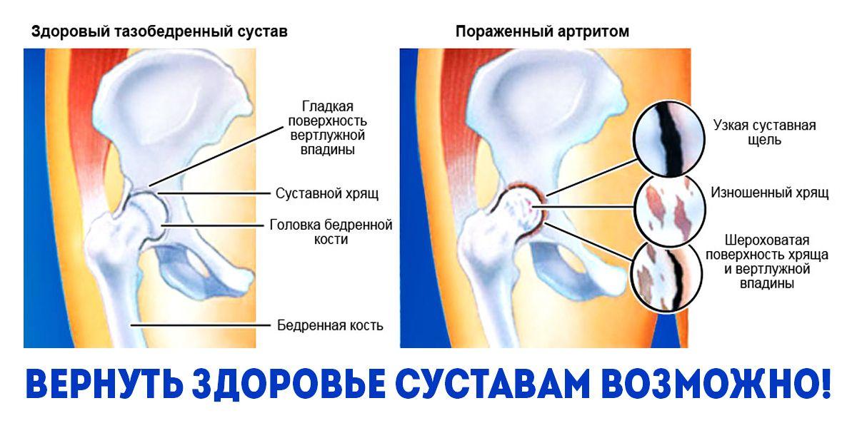 moszat és ízületi kezelés)