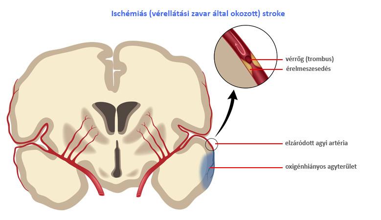 Stroke - nemcsak az agyat érintő