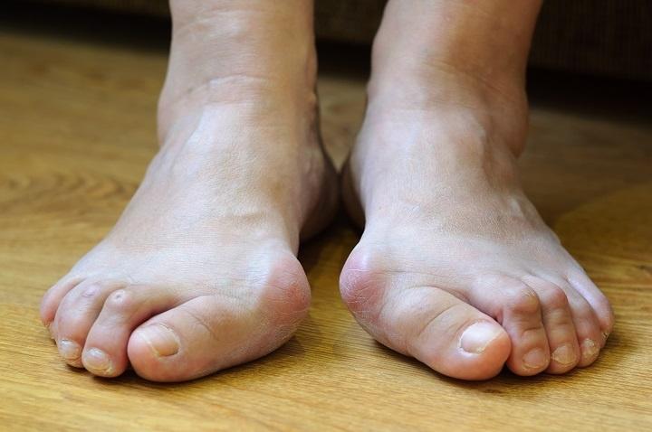 lábujjak angolul a láb osteoarthritisének orvosi kezelése