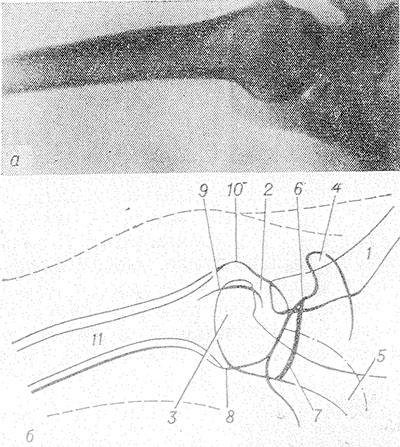 a könyökízület deformáló artrózisa 1-2 fokkal)