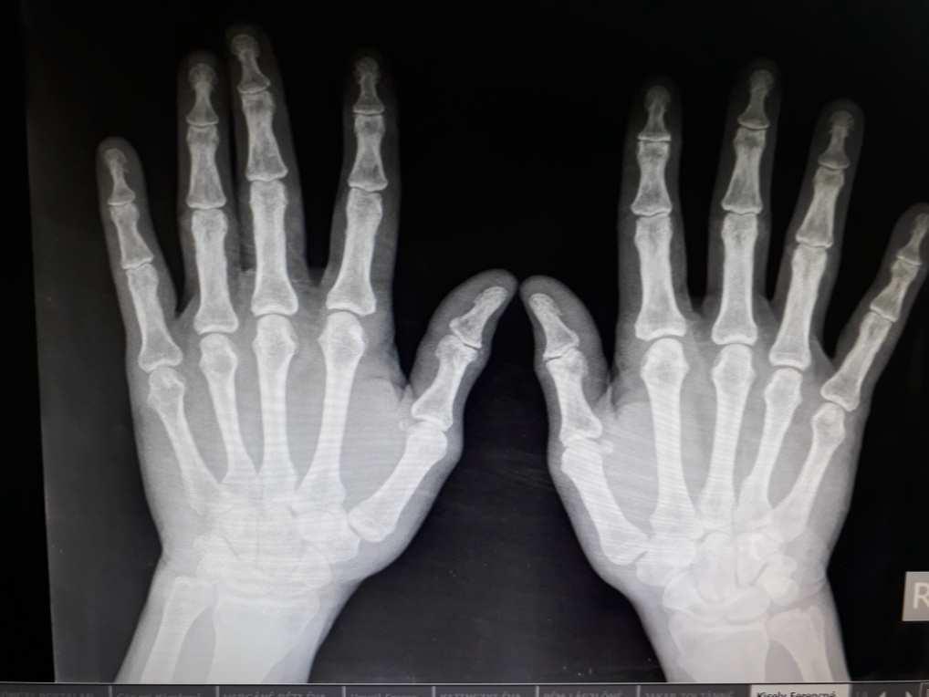 fájdalom a hüvelykujj carpal metacarpalis ízületében