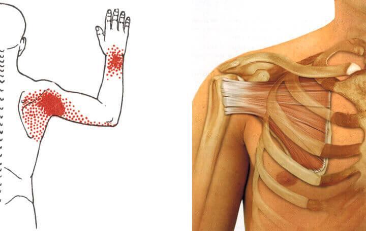 kenőcs a mellkasi gerinc osteokondrozisához implantátumok a térdízületen
