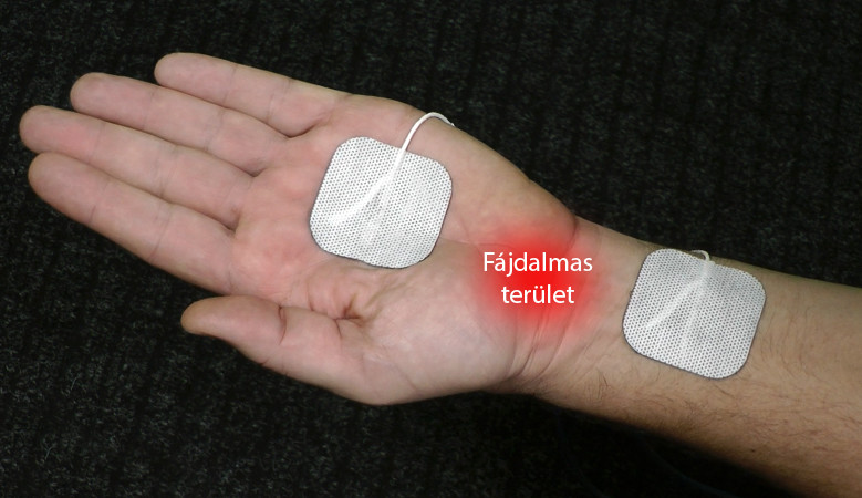 térdízületi kezelés diprospannal)