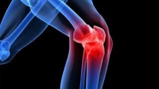 artrózis kezdők kezelése)