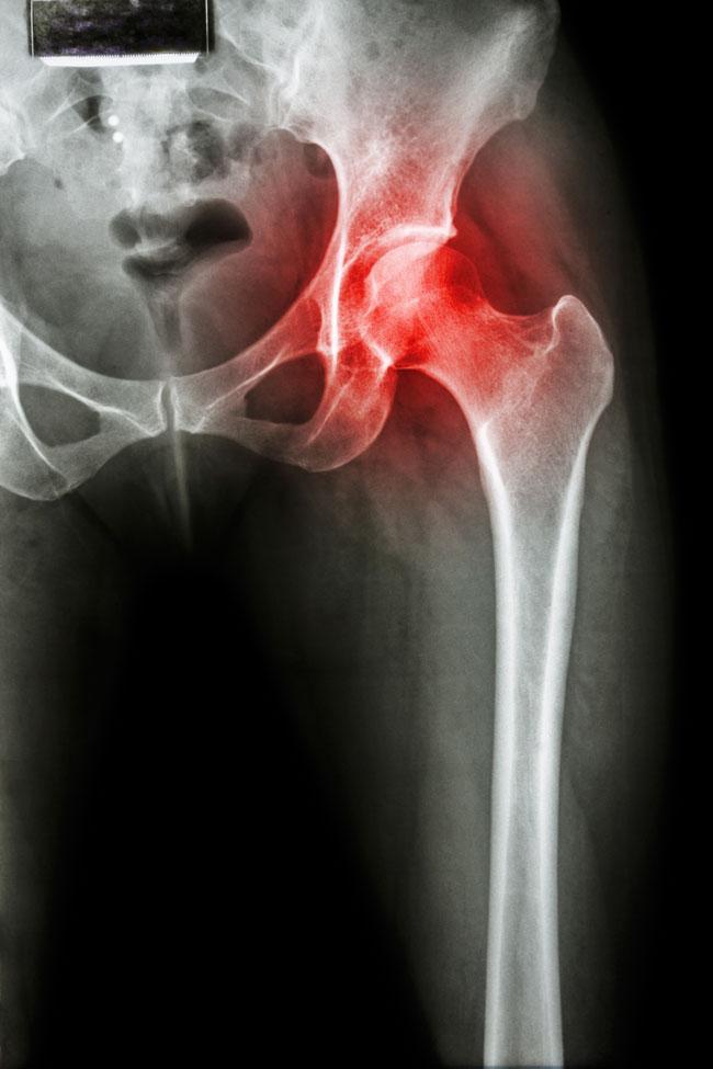ízületi fájdalom, csípőízület coxarthrosis)