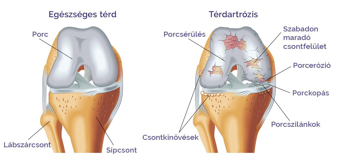 Artrózis kezelési válasz. Porcfelszín-károsodások (Porckopás)