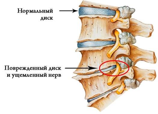 csípőízület megsemmisítés kezelése