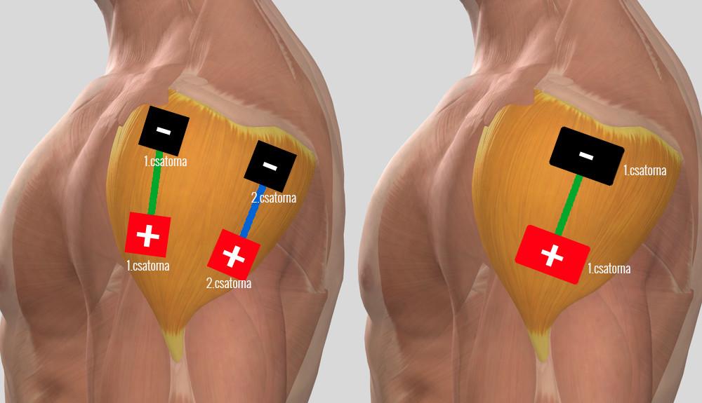 a bal vállízület kezelése myositis esetén