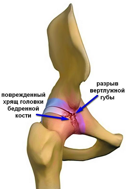 ha sérül a csípőízület