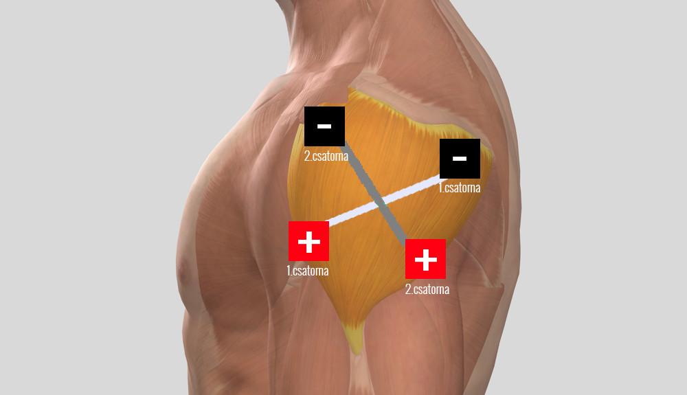 a jobb vállízület periarthritis kezelése)