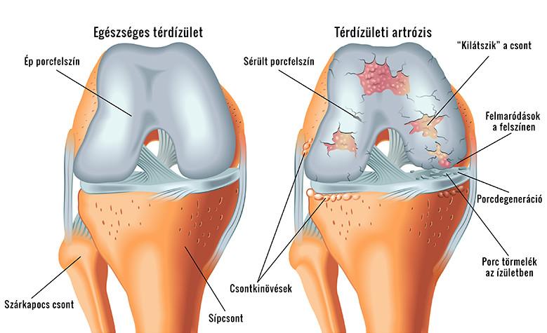 térdízület fejlődése sérülés után