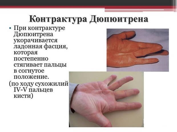 mi fáj a kéz ujjainak ízületei
