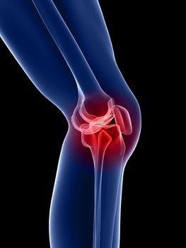 mi a teendő, ha a térd artrózisa a térdízület kezelésének ocp-je