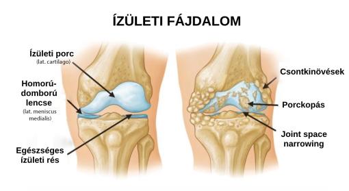 az srb fokozódott ízületi fájdalmak esetén