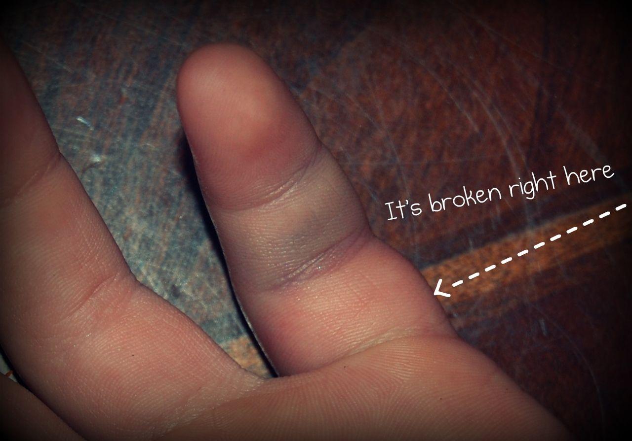 Az ujjait megráncolja. Miért nem hajlik az ujjak? Segítsen a fájdalomnak