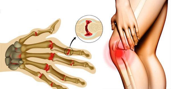 ellipszoid a csípőízület artrózisához