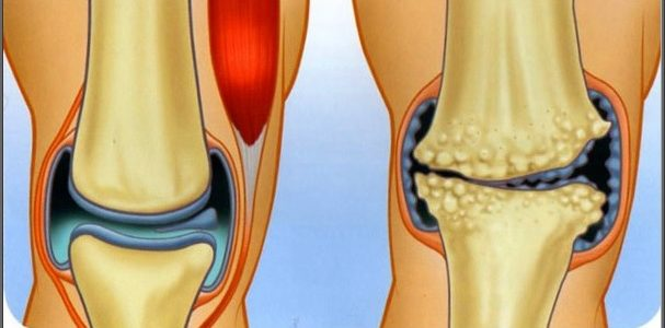 térd kezelés térd artrózis esetén)