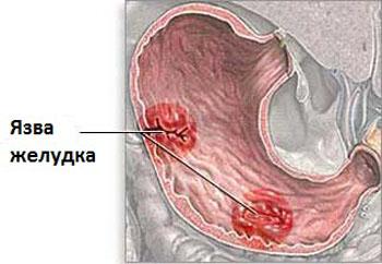 hogyan lehet eltávolítani az ízületi fájdalmakat osteochondrozzal