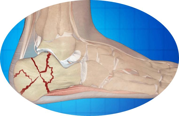 A bal vállízület fájdalma: okai, kezelési módjai - Köszvény July