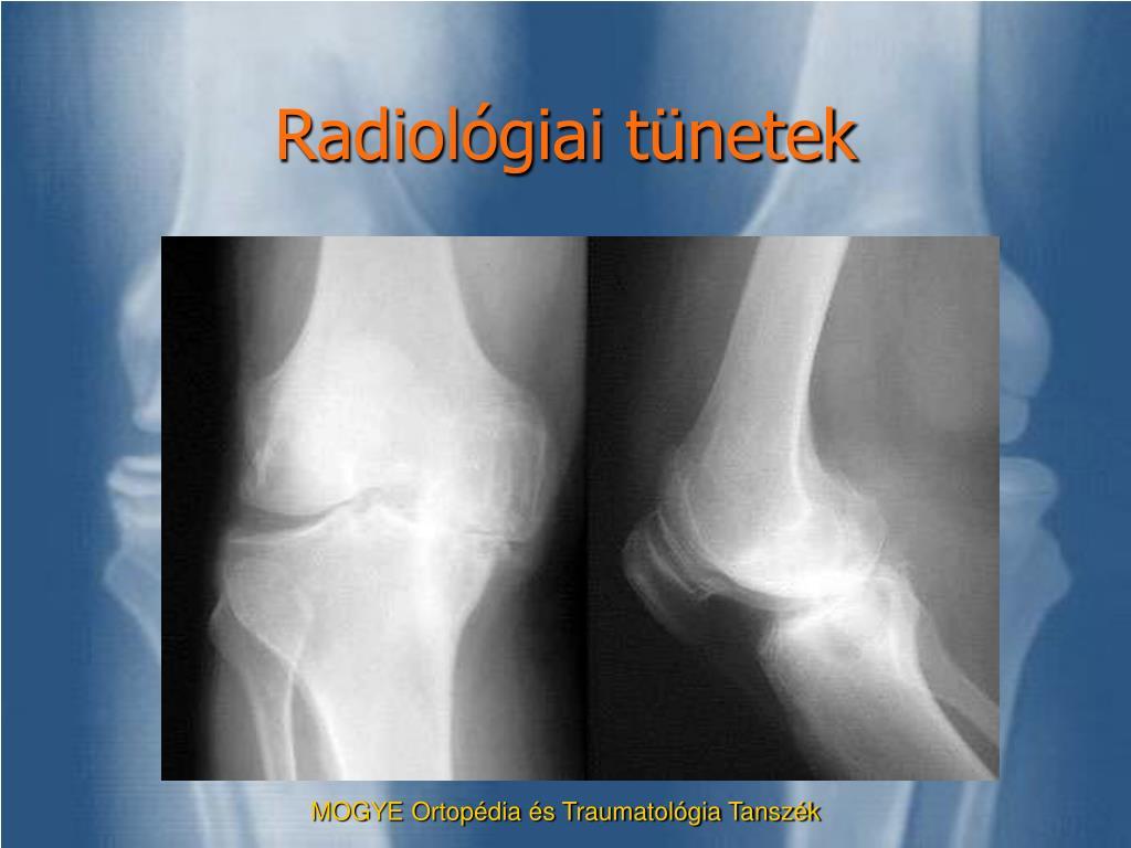 térdízületi tünetek kezelése gonarthrosis