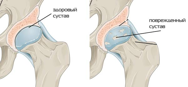 lehet-e gyógyítani a csípőízület artrózisát)