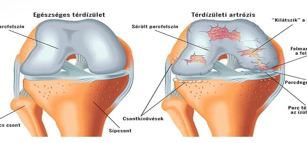 új gyógyszerek a térd artrózisához térdízület ízületi gyulladása és kezelése
