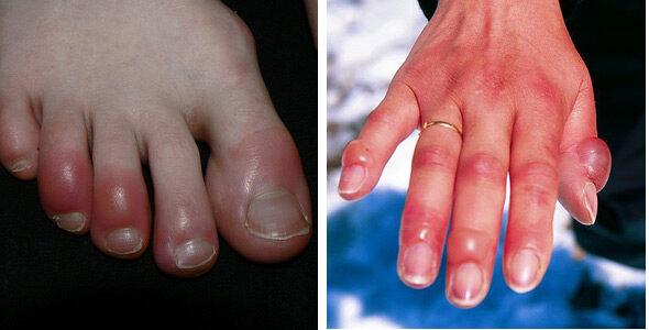 ujjak együttes kezelése