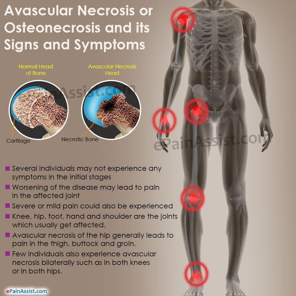 tizenéves ízületi betegség kopásos ízületi gyulladás( oszteoartritisz)