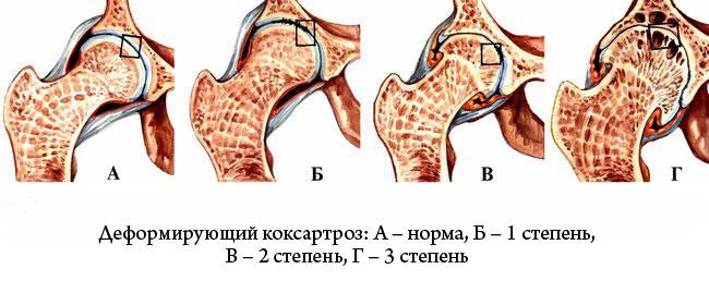 csípőkárosodás tünetei)