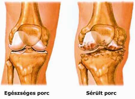 Megállítható-e az artrózis?