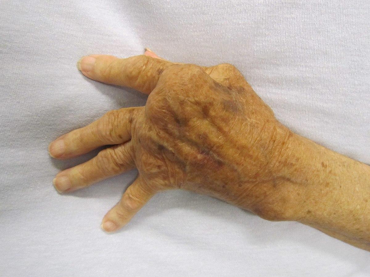 arthritis arthrosis clinic)