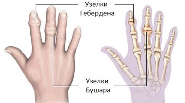 kúpok az ujjak ízületein)