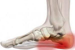 a lábujj ízülete fáj, mint kenet a medence ízületeinek fájdalmainak okai