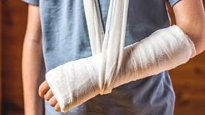 az ízületek fájnak a kéz törése után arthropant krém vásárol sas