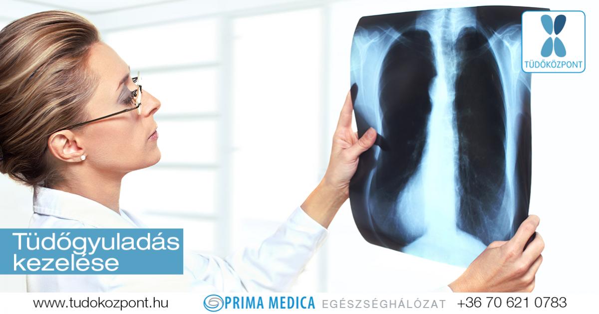 Tüdőgyulladás tünetei és természetes kezelése