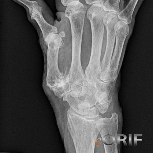 Hogyan lehet azonosítani és gyógyítani a hüvelykujj diszlokációját?