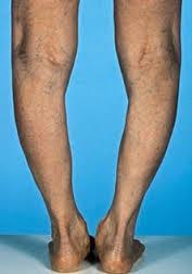nagyon rossz lábfájdalom az ízületben izületre gyógynövény