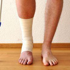 a lábízület ízületi gyulladása lapos lábakkal