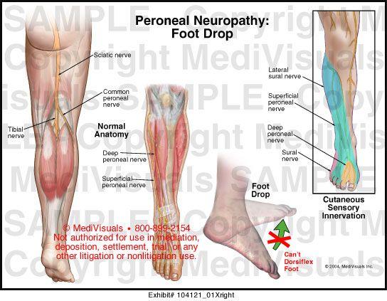 ízületi fájdalmak a láb kanyarjában