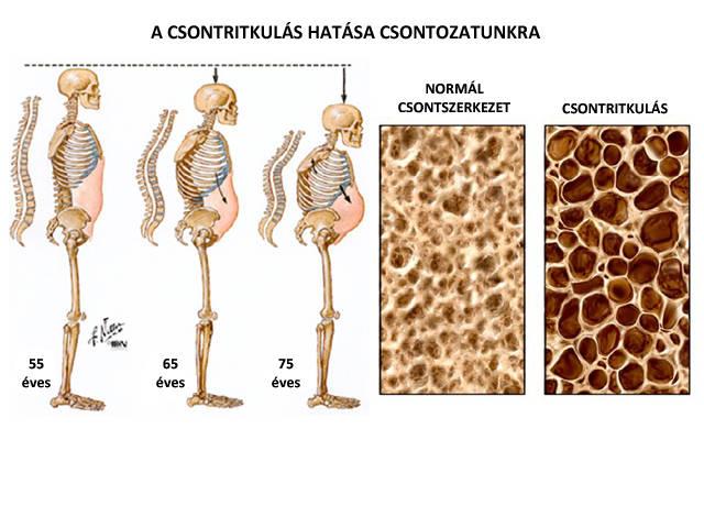 az artrózis rendszeres kezelése poszttraumás artritisz a bokaízület kezelése