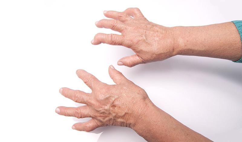 a kéz ízületeinek rheumatoid arthritis)