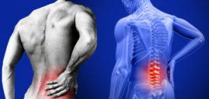 csípőízületek és hátfájás orvosok az artrózis kezeléséről