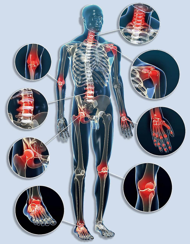 gerinc és ízületek fertőző betegségei fájdalom a kézízületben, mit kell tenni