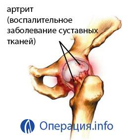3. szakasz a csípőízület deformáló artrózisa